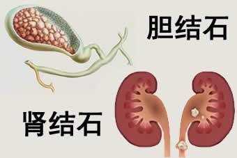 胆结石-肾结石