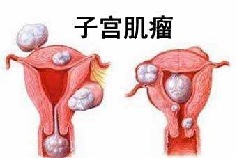 子宫肌瘤 月经不调