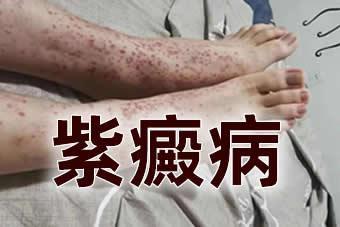 紫癜病-中医治疗