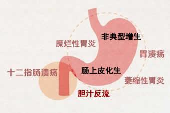 胃病的分类